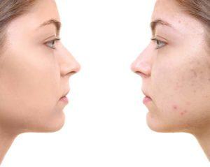 acne 300x239
