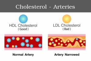 cholesterol arteries